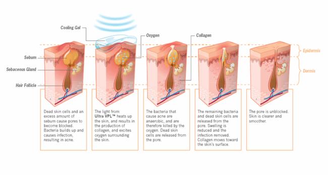 Effect gepulseerd licht op acné