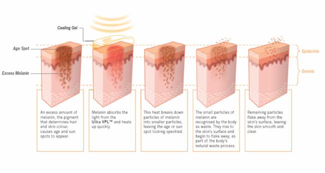 Effect gepulseerd licht op ouderdomsvlekken