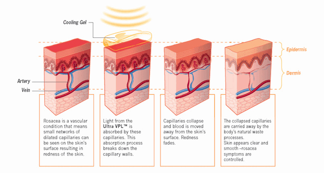 Effect gepulseerd licht op Rosacea