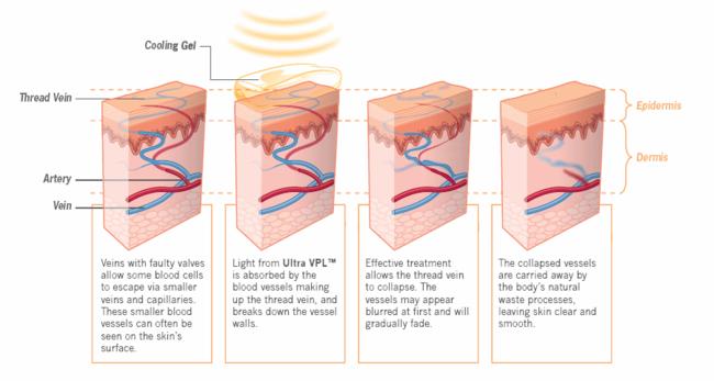 Effect gepulseerd licht op spataders